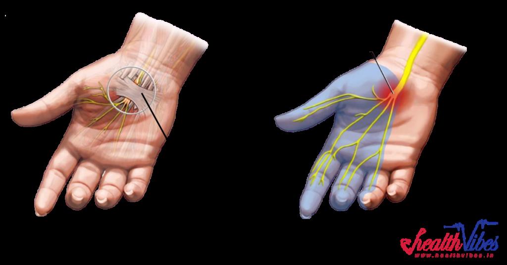 Median Nerve is compressed