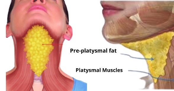 Double Chin -Platysma muscle and Pre- Platysma muscle