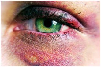 Eye contusion