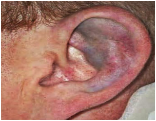 Cartilage contusion